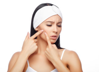 5 Ways To Get Rid Of That Pimple Quickly!
