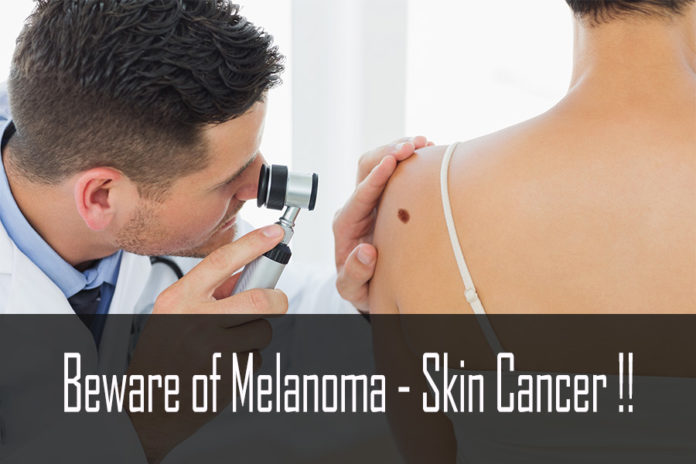 Beware of Melanoma - Skin Cancer !!