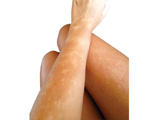 3-steps-to-the-prefect-self-tan-in-winter