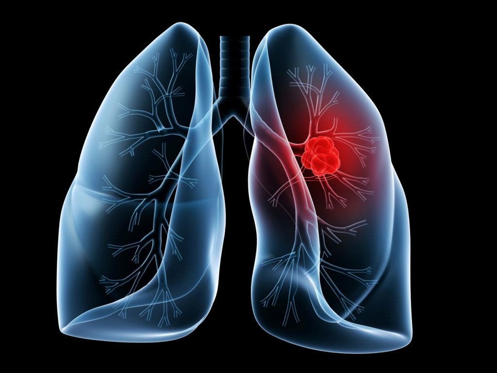 Lung Cancer Awareness Month 2016