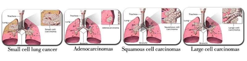 the two major types of lung cancer Learn more on the different types of lung cancer lung cancer  fastest growing  type of nsclc makes up about 2% of lung cancer diagnoses.