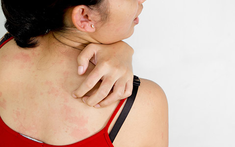 4-Methods-To-Prevent-Eczema-From-Taking-Over!_1