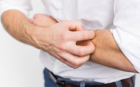 4-Methods-To-Prevent-Eczema-From-Taking-Over!_2