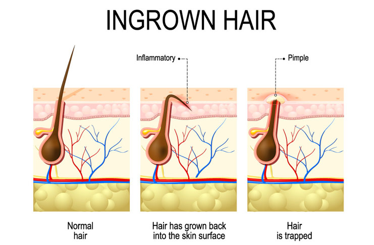 suffering from ingrown hair know more and control it beauty glitch