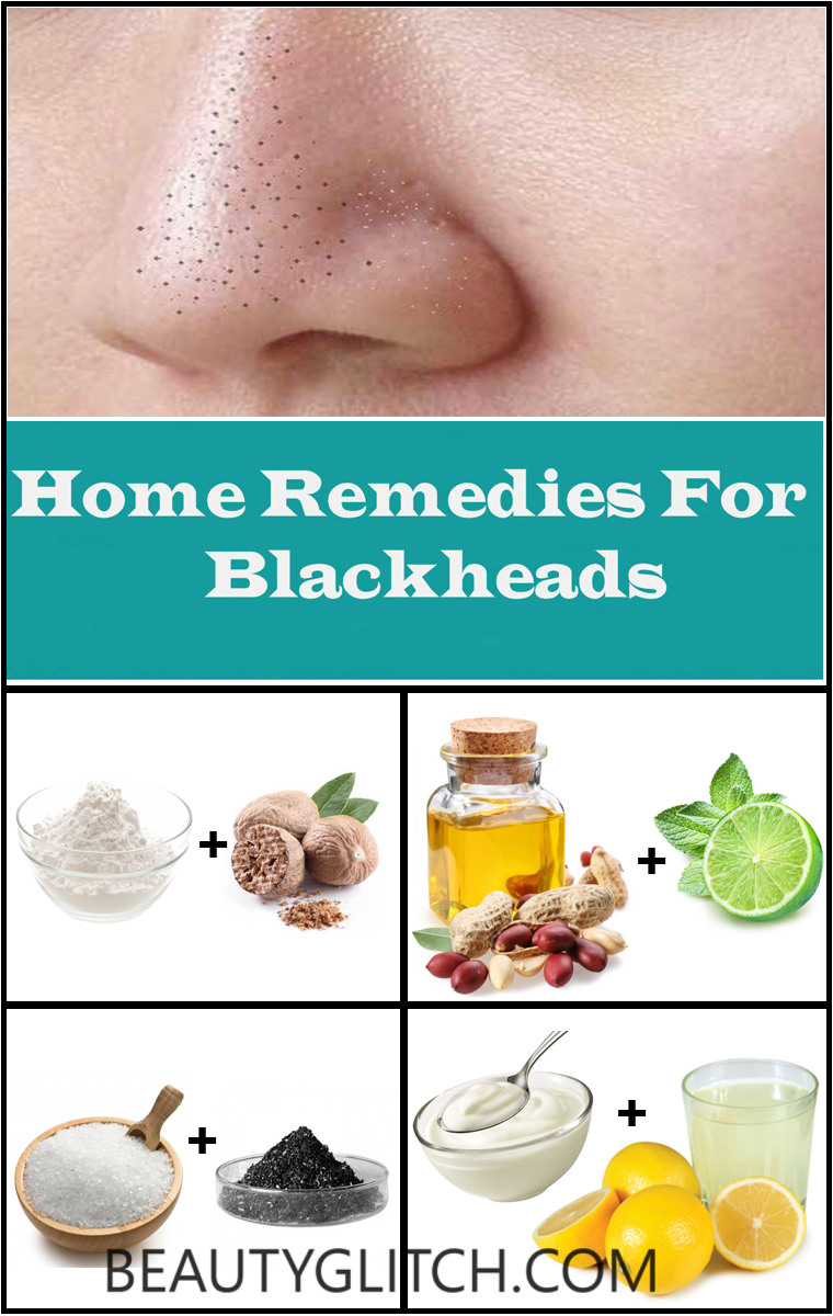 How To Remove Blackheads On Nose Instant Blackheads Removal