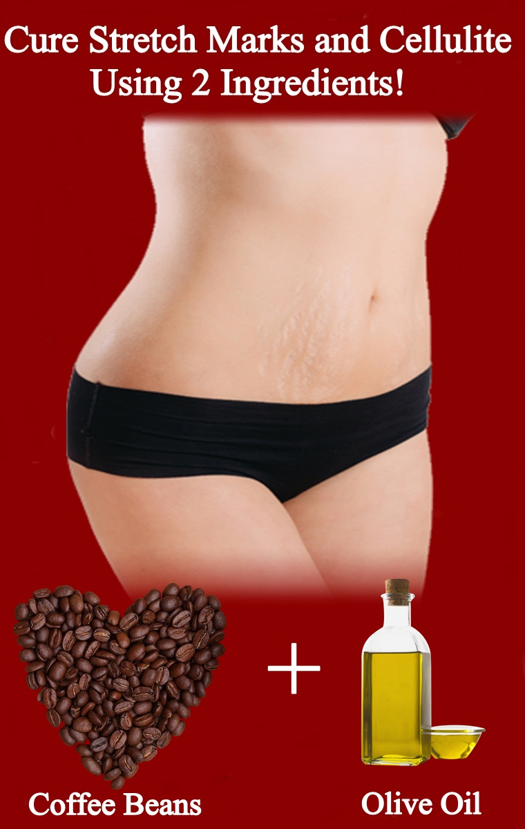 Coffee Scrub For Stretch Marks and Cellulite