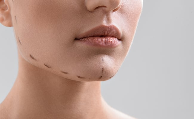 Medical Treatment to hide a double chin