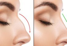 Reasons to Have Rhinoplasty
